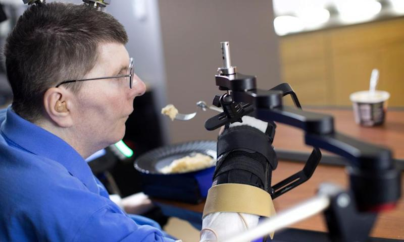 Bill Kochevar, who was paralysed eight years ago, but has regained some control of his arm thanks to neuroprosthetics.