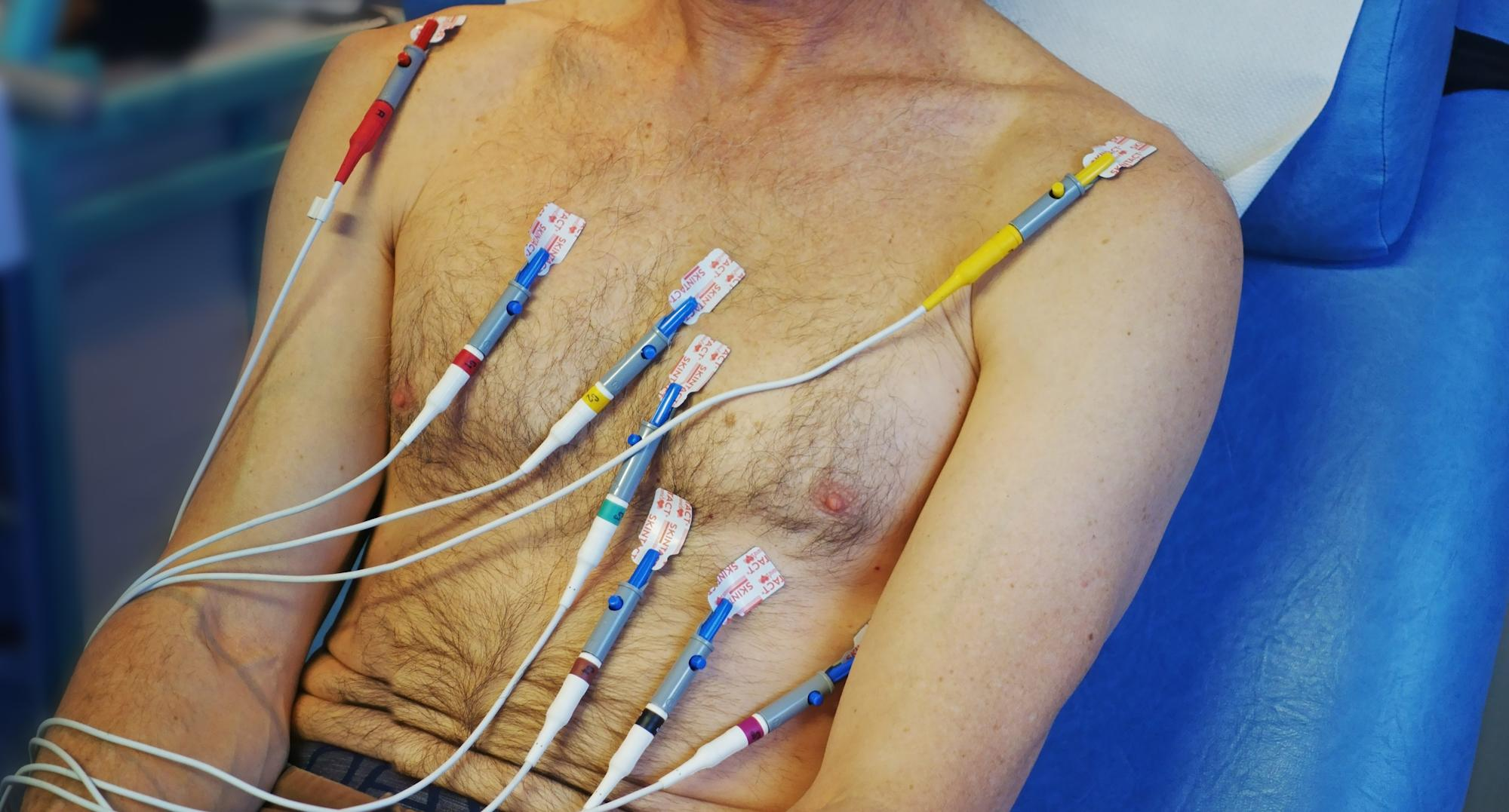 Creepy reason why this man suffered a 'heart attack'; no, he did not have heart disease