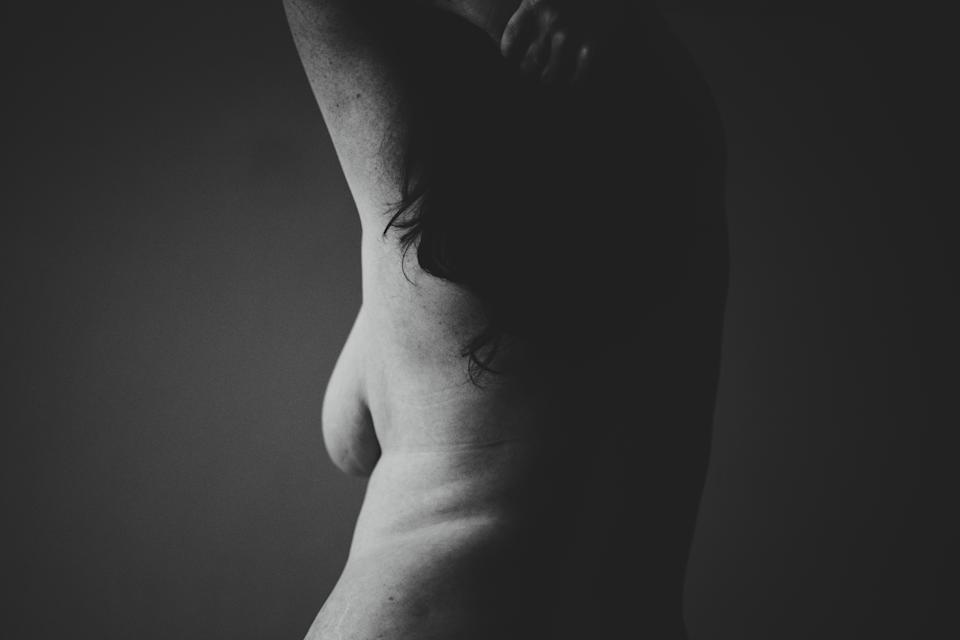 Women are sharing their no bra pictures for breast cancer awareness. [Photo: Unsplash]