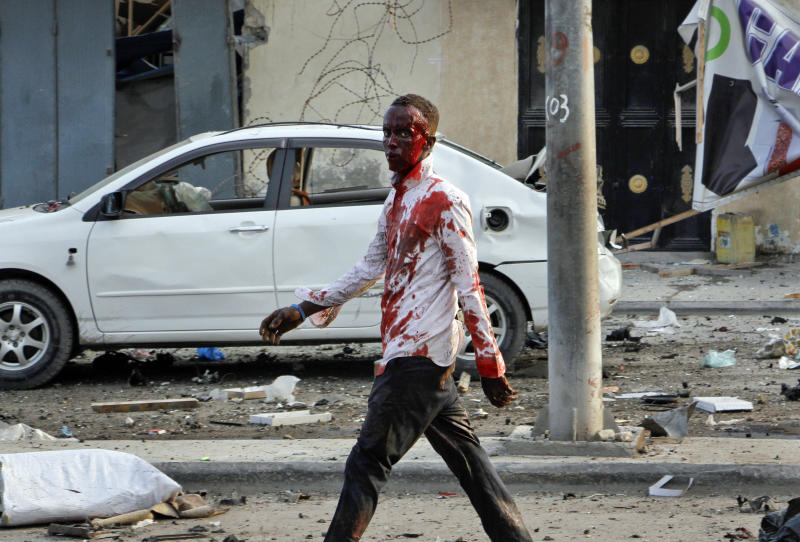 An injured civilian walks away from the scene after being wounded in a bomb blast near the Sahafi hotel in the capital Mogadishu, Somalia, Friday, Nov. 9, 2018. Three car bombs by Islamic extremists exploded outside the hotel, which is located across the street from the police Criminal Investigations Department, killing at least 10 people according to police. (AP Photo/Farah Abdi Warsameh)