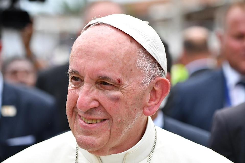 Pope Francis shows a bruise around his left eye and eyebrow caused by an accidental hit against the popemobile's window glass while visiting the old sector of Cartagena, Colombia, on September 10, 2017 (AFP Photo/Alberto PIZZOLI)
