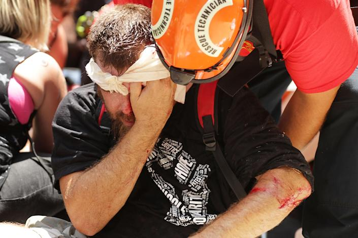 <p>Rescue workers and medics tend to many people who were injured when a car plowed through a crowd of anti-facist counter-demonstrators marching through the downtown shopping district Aug. 12, 2017 in Charlottesville, Va. (Photo: Chip Somodevilla/Getty Images) </p>