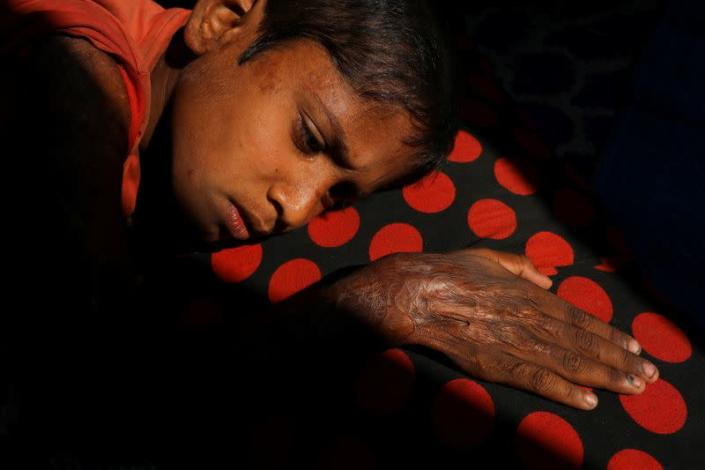 The Wider Image: 'Can't take this pain': Rohingya mother searches for son after refugee camp blaze