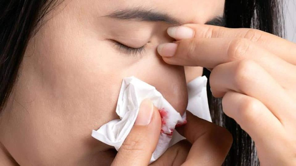 #HealthBytes: Nose bleeding after COVID-19 recovery; causes, prevention, and first-aid