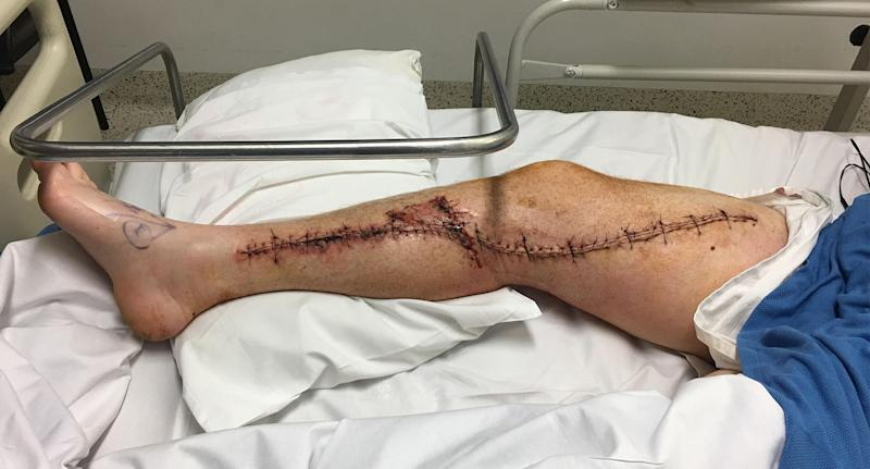 The impact was just millimetres from Rob Wells' main artery and he came close to losing his leg. Source: Rob Wells