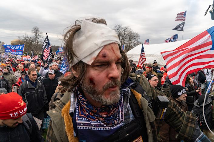 """An injured pro-Trump supporters outside the Capitol building after clashes with police and security forces in Washington D.C., on Jan. 6.<span class=""""copyright"""">Peter van Agtmael—Magnum Photos for TIME</span>"""