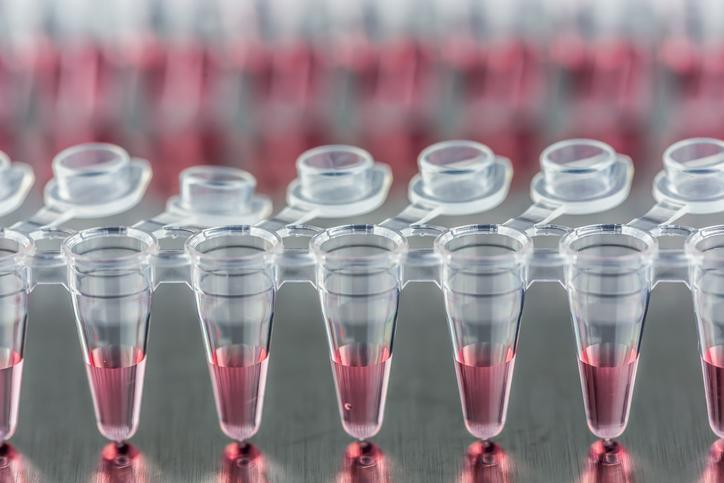 A row of PCR tubes with pink liquid in them.