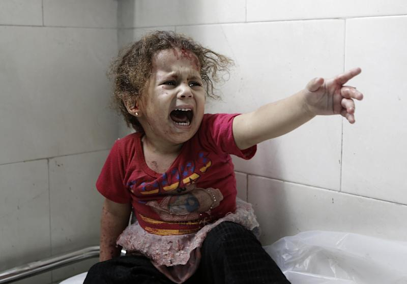 A screaming Palestinian child is treated at al-Shifa hospital after Israeli forces shelled her home in Gaza City on July 18, 2014