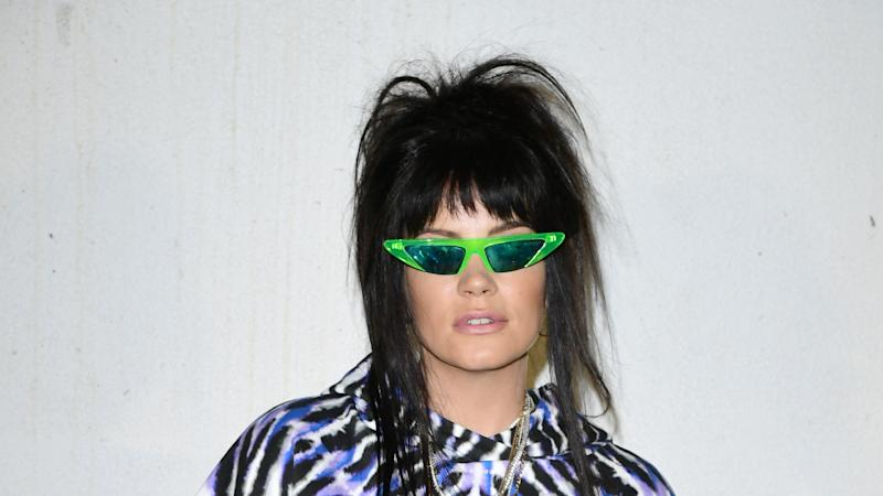 Lily Allen claims media criticism motivated by 'misogyny'