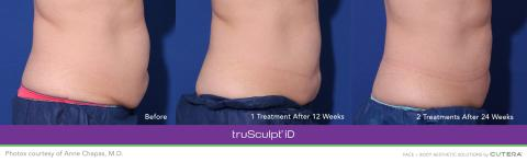 Cutera Receives Additional Approval from Health Canada for its truSculpt® iD Body Sculpting Technology