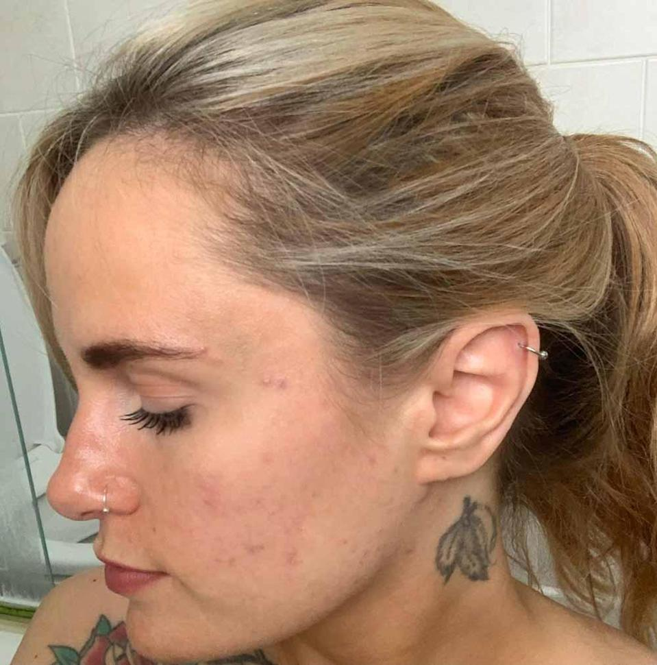 Kerrie, pictured after using the product in July 2021, says Utan helped clear her spots. PA REAL LIFE/COLLECT