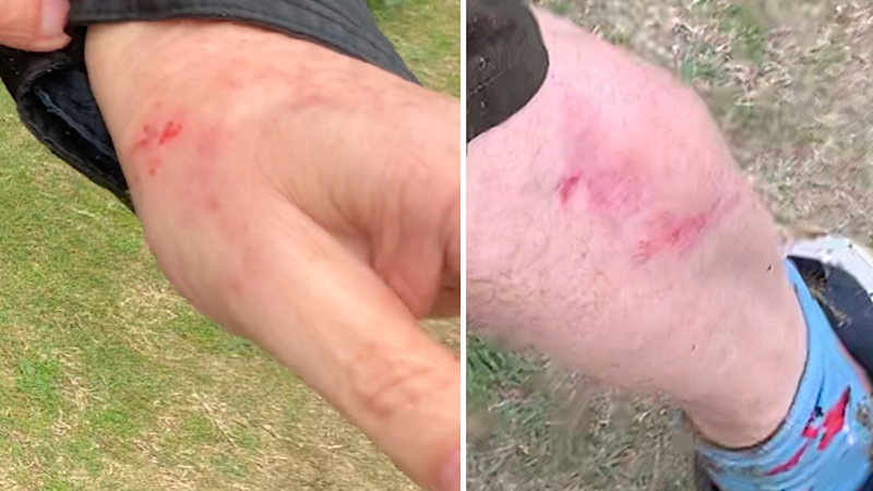 Close up of Paul McCloskey's hand and leg showing abrasions.
