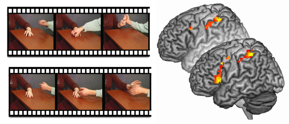 This image shows the movies shown to the participants (left) and brain activation of the participants with psychopathy without instructions (behind) and with instructions to empathize (front).