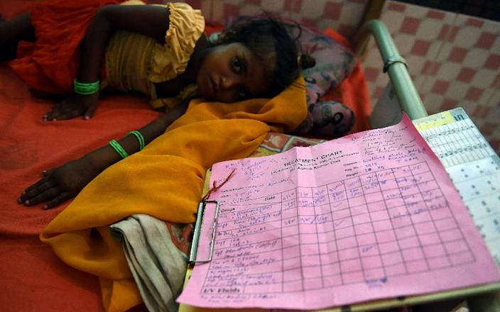 Four-year-old malnourished child Komal Kumari lies on a bed at the Nutritional Rehabilitation Centre at Darbhanga Medical College and Hospital in Bihar (AFP Photo/Money Sharma)