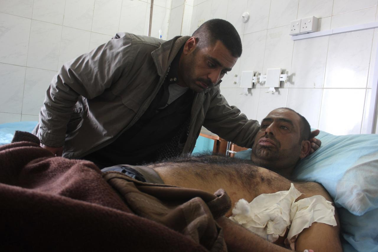 A man who was wounded in a bomb attack lies at a hospital in Baquba