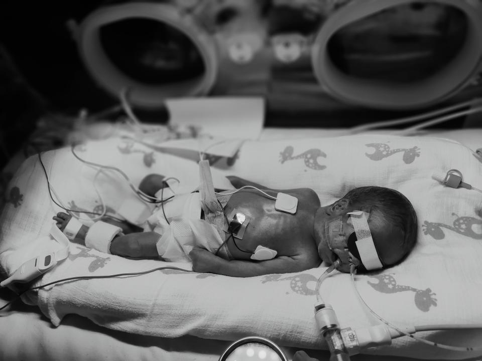 Picture shows Velora being held in an incubator at Ronald McDonald house in Herston. Source: supplied