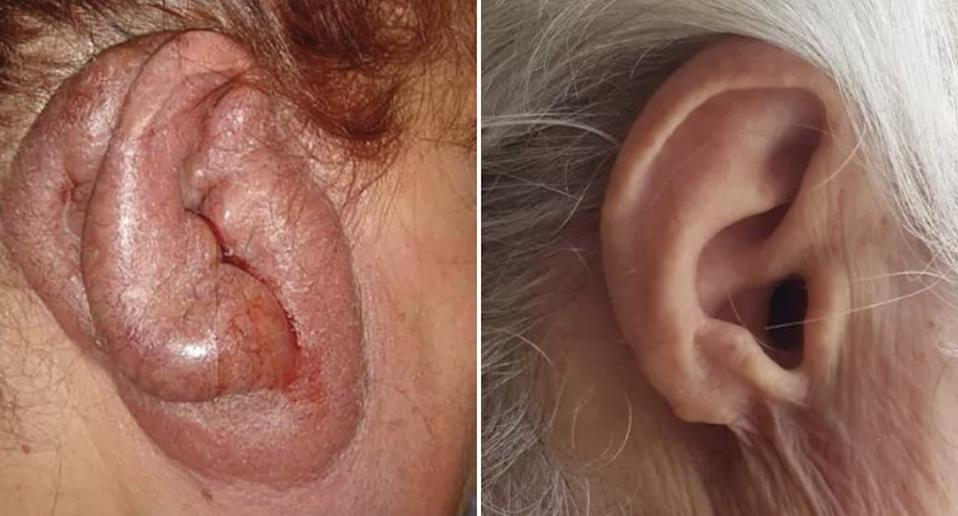 A woman is pictured with 'turkey ear' or a swollen ear.