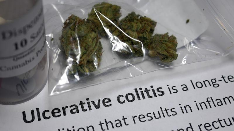 Ulcerative Colitis - Qualifying Condition for a Medical Marijuana.