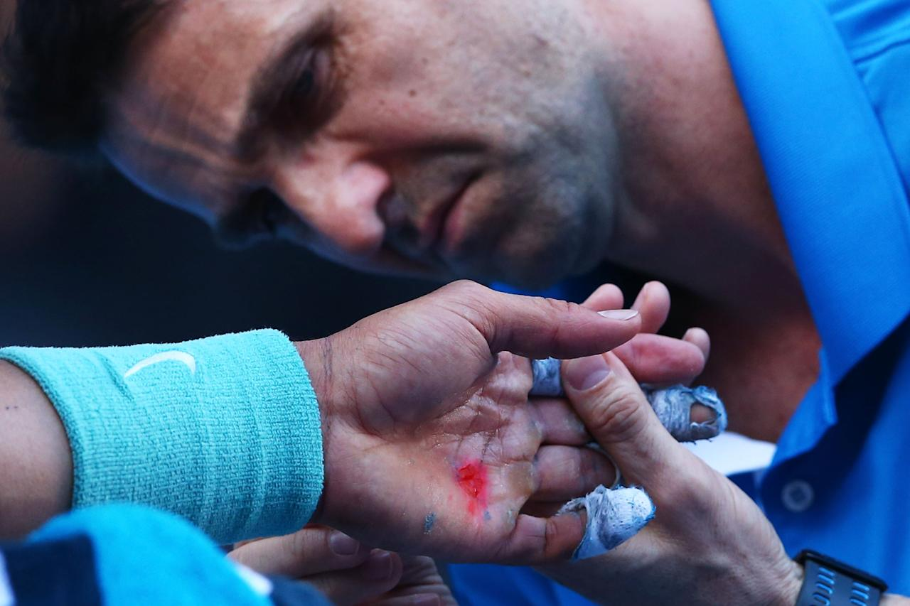MELBOURNE, AUSTRALIA - JANUARY 22: A trainer treats the blister on the hand of Rafael Nadal of Spain in his quarterfinal match against Grigor Dimitrov of Bulgaria during day 10 of the 2014 Australian Open at Melbourne Park on January 22, 2014 in Melbourne, Australia. (Photo by Quinn Rooney/Getty Images)