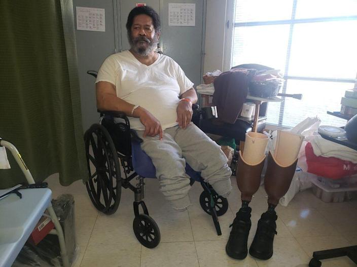 Jerry Holliman with the prosthetic legs that were returned to him.