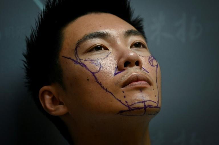 Worried his appearance would detract from opportunities in China's competitive society, Xia Shurong decided to go under the surgeon's knife to reshape his nose -- one of millions of young men in the country turning to cosmetic surgery (AFP/WANG ZHAO)