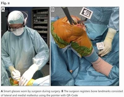 A: Vuzix Smart Glasses worn by the surgeon during surgery.  B: The surgeon records the bony landmarks made up of the lateral and medial malleoli using the pointer with QR-Codes.