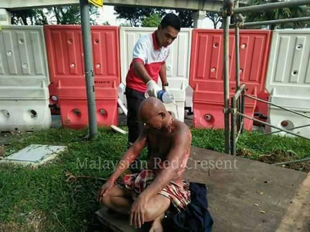Police now say man in viral photo splashed with petrol, not acid