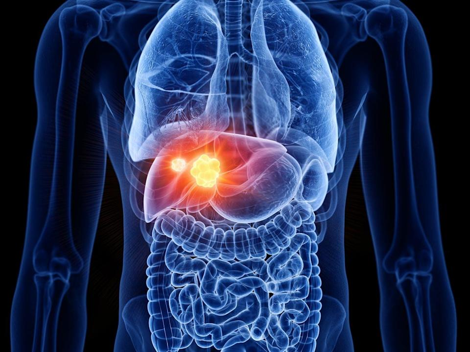 """<span class=""""attribution""""><a class=""""link rapid-noclick-resp"""" href=""""https://www.shutterstock.com/es/image-illustration/3d-rendered-medically-accurate-illustration-liver-1470843689"""" rel=""""nofollow noopener"""" target=""""_blank"""" data-ylk=""""slk:Shutterstock / SciePro"""">Shutterstock / SciePro</a></span>"""