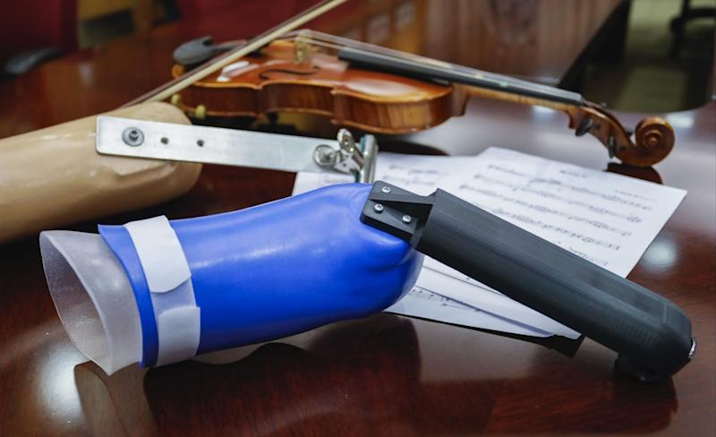New prosthetic arm from Hong Kong university helps make amputee's musical dreams come true