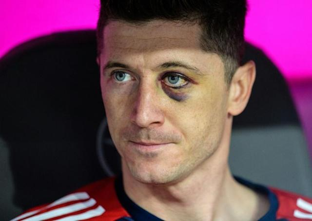 Eye on the game: Bayern Munich forward Robert Lewandowski sits on the bench sporting a black eye during the Bundesliga match against Borussia Moenchengladbach on Saturday