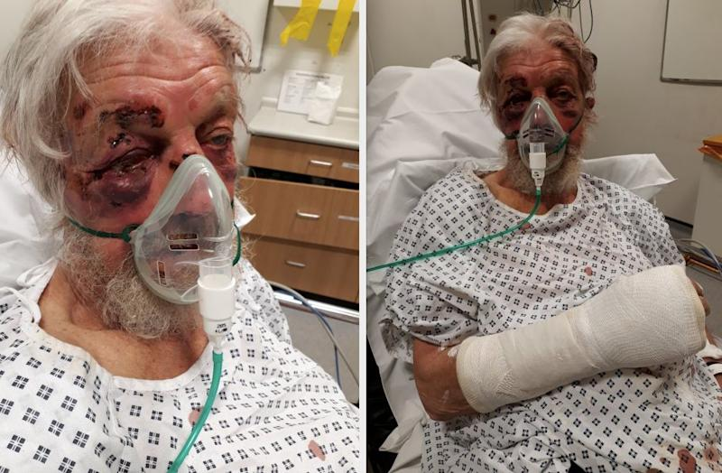 The pensioner suffered serious injuries following the 'nonsensical' attack (Met Police)