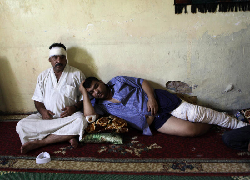 Injured brothers Ali Abbas, left, and Ahmed Abbas, rest in their house after being injured in a late-night car bombing Monday near a cafe in al-Amin Shiite neighborhood in eastern Baghdad, Iraq, Tuesday, July 24, 2012. Violence shook more than a dozen Iraqi cities Monday, killing more than 100 people in coordinated bombings and shootings and wounding twice as many in the country's deadliest day in more than two years. (AP Photo/Khalid Mohammed)