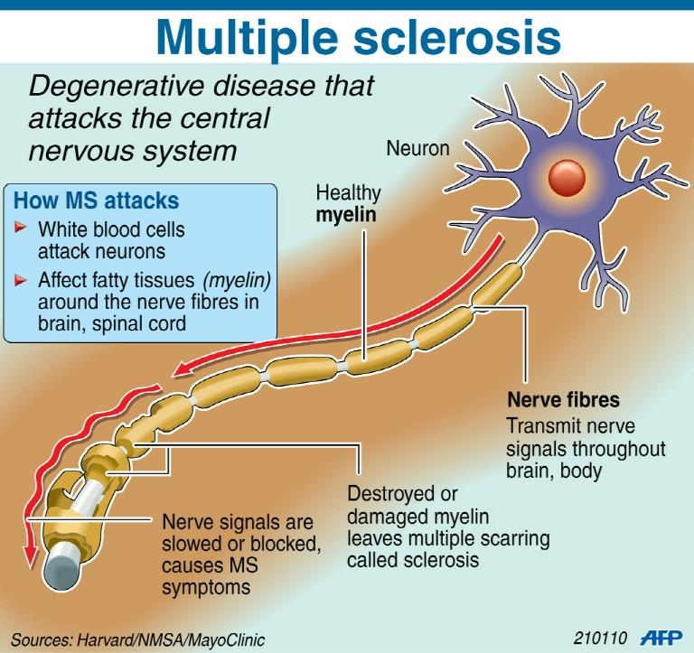 Fact file on the degenerative disease multiple sclerosis