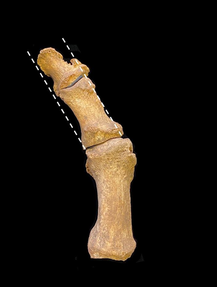 The excavated medieval foot bones show a bunion. (Supplied: Dr Jenna Dittmar)
