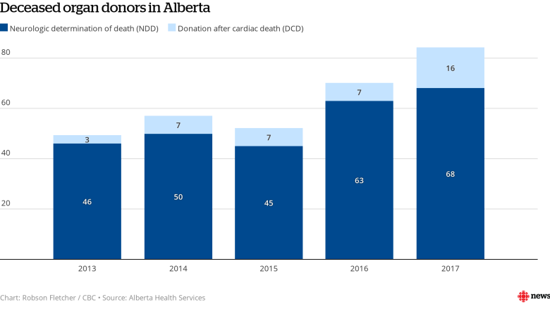 How dropping the 'brain death' requirement has boosted organ donations in Alberta