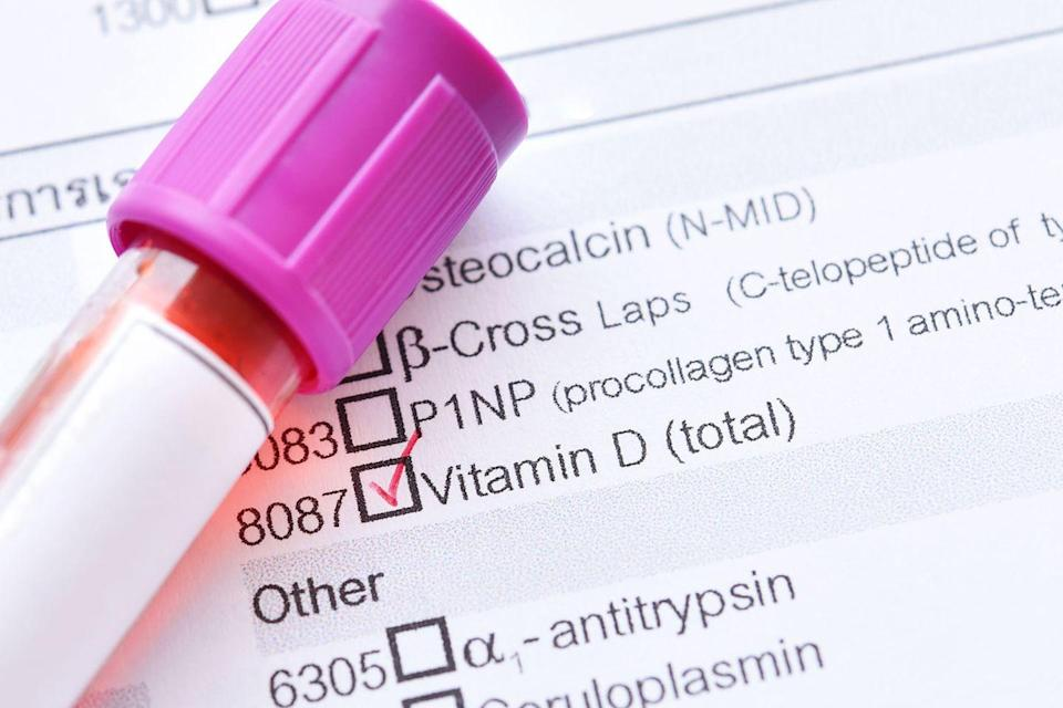 <p>For optimal disease protection, we need at least 30 nanograms of vitamin D per milliliter of blood, reports a study in the Archives of Internal Medicine. Nearly 80% of Americans have less than that. Vitamin D not only helps bones ward off osteoporosis but may also reduce your risk of cancer, heart disease, and infection, says lead researcher Adit A. Ginde, MD, MPH, an assistant professor of surgery at the University of Colorado Denver School of Medicine. If needed, you can take a daily supplement to get your numbers up. Doctors can measure your levels with a simple blood test, but periodic monitoring may be necessary—vitamin D turns toxic at 100 to 150 ng/mL.</p>