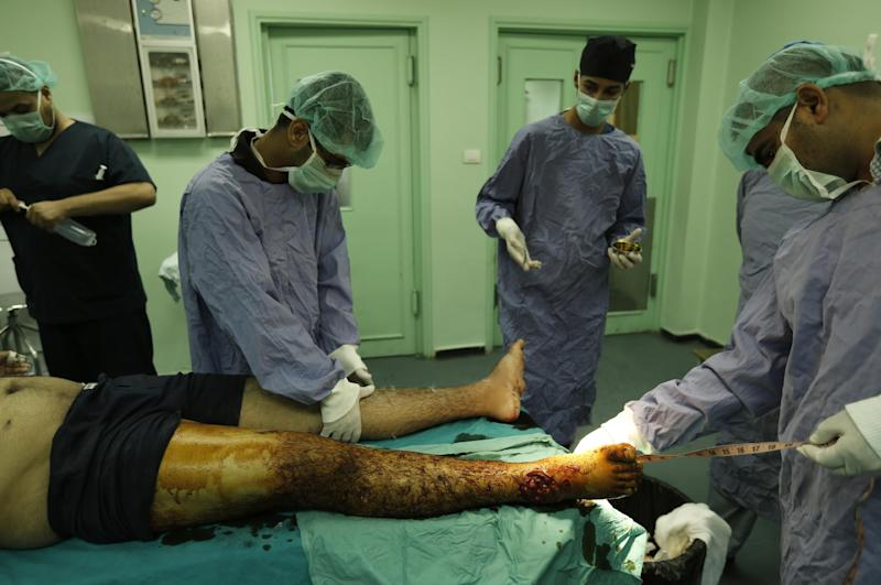 Dcotors treat a patient suffering from severe burns at the Al-Shifa hospital in Gaza City, on August 3, 2014 (AFP Photo/Mohammed Abed)
