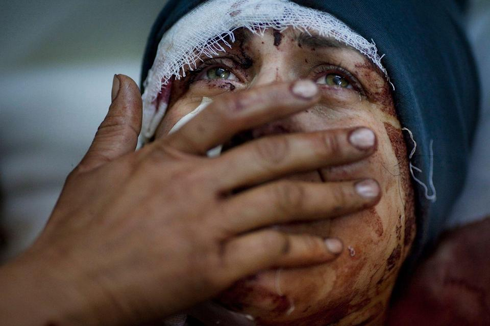 <p>2012. AP Caption: A woman named Aida cries as she recovers from severe injuries after the Syrian army shelled her house in Idlib, northern Syria. Aida's husband and two children were killed in the attack.</p>
