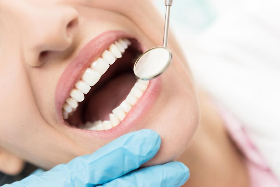 If your teeth are uneven don't file them yourself, visit your dentist. (Getty Images)