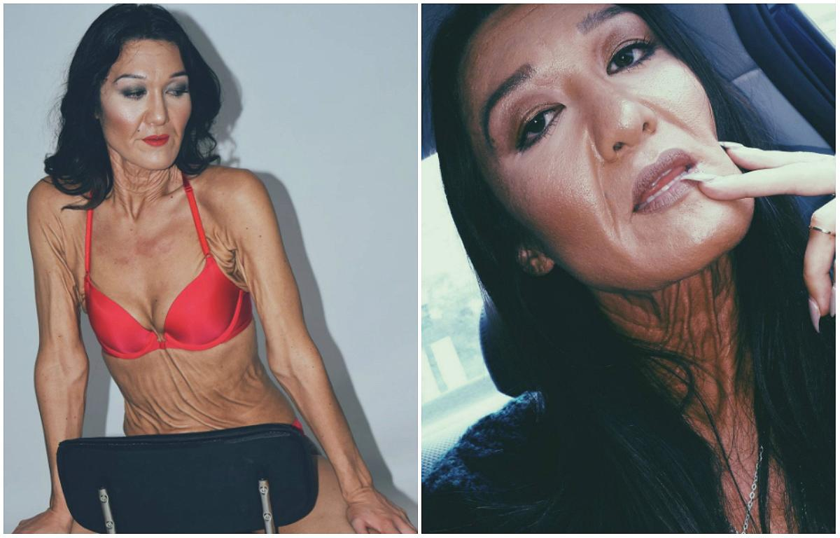 <p>Sara Geurts is only 26-years-old, but suffers from Ehlers-Danlos Syndrome — a rare genetic disorder that affects the body's production of collagen and can cause one's skin to be stretchy, saggy, and fragile. Through modeling, Geurts hopes to be the face of Ehlers-Danlos Syndrome and raise awareness about the disorder. Click through the gallery to see more stunning photos of this amazing woman and let us know what you think. </p>