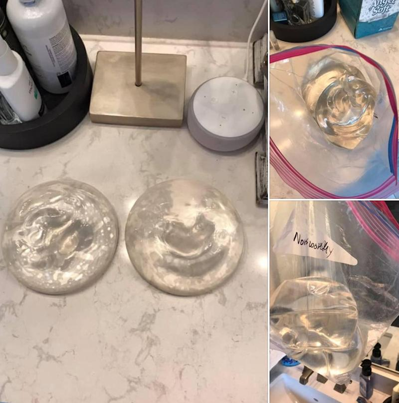 A Texas woman posted her old breast implants on Facebook Marketplace. (Photo: Facebook)