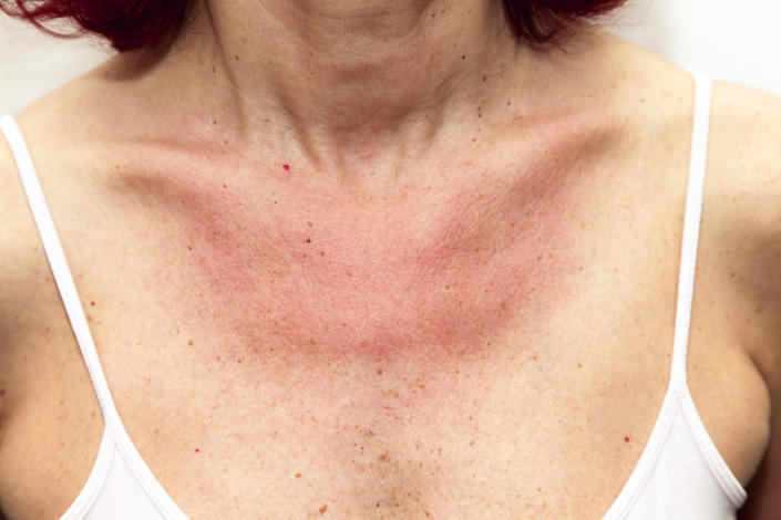 Woman with sunburns and Allergic reaction after unprotected sunbathing, acute state