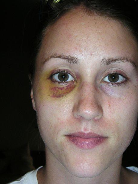 PHOTO: Colbie Holderness released this photo showing a black and blue eye. She claims Rob Porter punched her in the face more than a decade ago. (Courtesy Colbie Holderness)