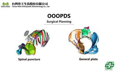 OOOPDS medical used surgical planning software received TFDA Class II
