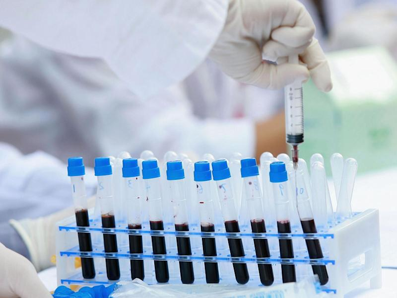 A new blood test is able to detect more than 50 types of cancer: China Photos/Getty Images