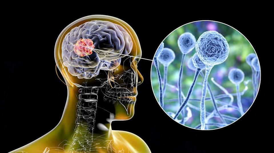 """<span class=""""attribution""""><a class=""""link rapid-noclick-resp"""" href=""""https://www.shutterstock.com/es/image-illustration/brain-mucormycosis-lesion-caused-by-fungi-1978984895"""" rel=""""nofollow noopener"""" target=""""_blank"""" data-ylk=""""slk:Shutterstock / Kateryna Kon"""">Shutterstock / Kateryna Kon</a></span>"""