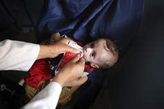 A baby is fed a supplement.