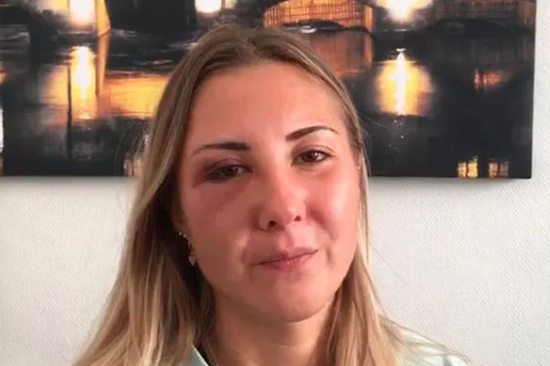 Pictured is Elisabeth with a bruised eye after she was attacked for wearing a skirt.
