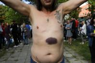 A man shows bruises he says were left by police beating after being released from a detention center where protesters were detained during a mass rally following the presidential election in Minsk, Belarus, Friday, Aug. 14, 2020. Belarusian authorities have released more than 1,000 people detained during a violent police crackdown on protests and many talked about brutal beatings and other abuse by police. (AP Photo/Sergei Grits)