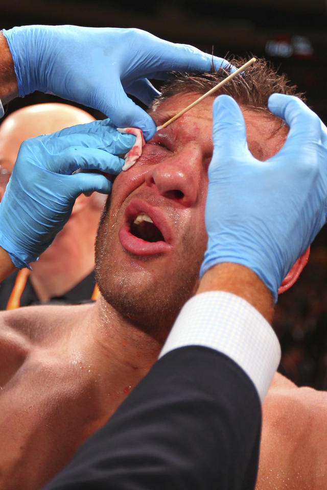 Sergiy Derevyanchenko sits in his corner as his eye is tended to by medical personnel after his IBF middleweight championship title bout against Gennadiy Golovkin at Madison Square Garden in New York on Saturday, Oct. 5, 2019. Golovkin won by decision. (AP Photo/Rich Schultz)